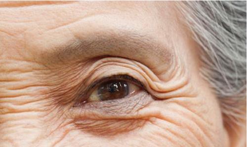 老花眼、白内障、飞蚊症与胶原蛋白的关系